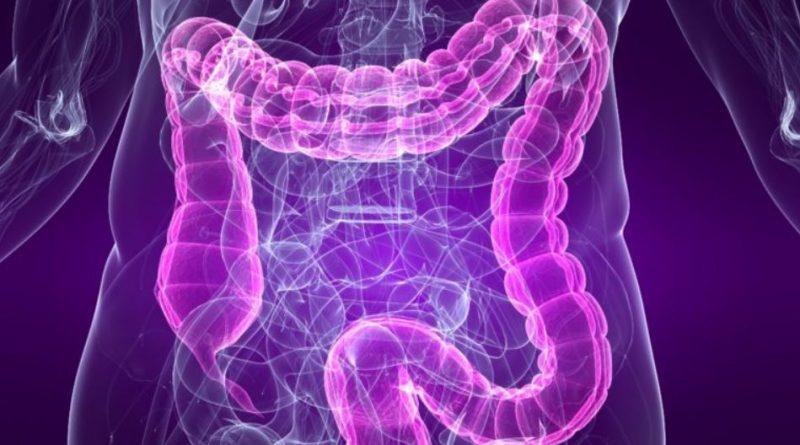 Alimentos ultraprocesados y enfermedad inflamatoria intestinal: una asociación positiva según el estudio internacional PURE